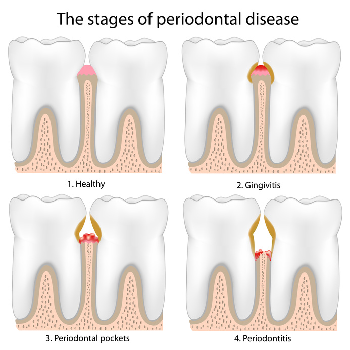 gingivitis cause and treatment However, if left untreated, gingivitis may progress to periodontitis, a more serious type of gum disease causes while several factors may contribute to gingivitis, the underlying cause is always excess bacteria accumulation in the form of plaque and tartar.