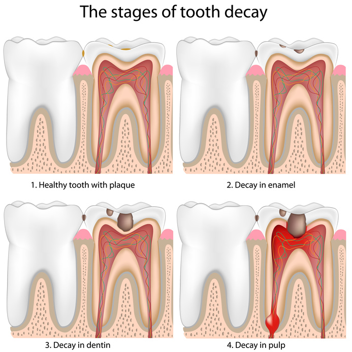 root canal stages